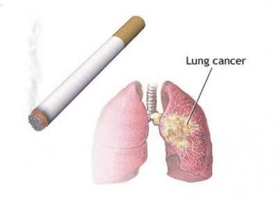 أكتشاف الأدلة العلمية التي تؤكد العلاقة بين التدخين والإصابة بسرطان الرئة